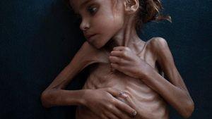 Πέθανε η 7χρονη Αμαλ, σύμβολο του λιμού στην Υεμένη