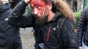Ένωση Φωτορεπόρτερ: Καταγγελία για τις επιθέσεις στο συλλαλητήριο για τη Μακεδονία